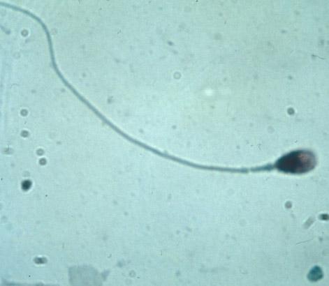 kak-ozhivit-mertvih-spermatozoidov